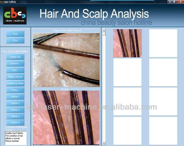scalp machine