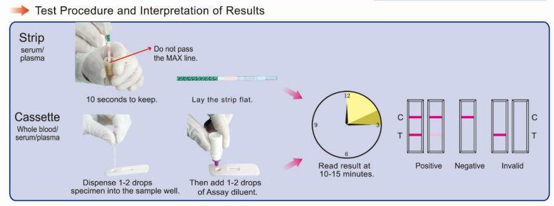 One Step Hbv Hepatitis B Virus Rapid Test 5 In 1 Device