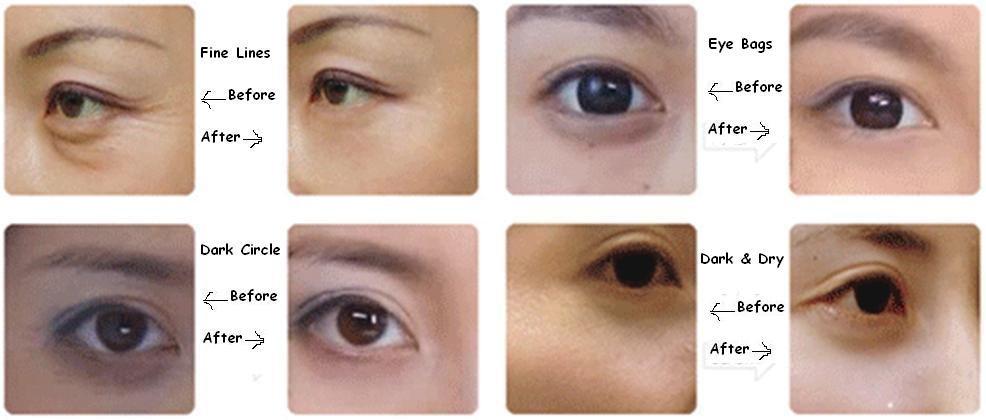 Milky White Moisturizing Eye Bag Removal Collagen Under Eye Mask - Buy  Under Eye Mask,Collagen Eye Mask,Eye Bag Removal Mask Product on Alibaba com
