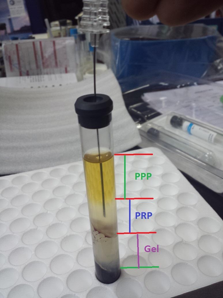 Steriled Prp Tube Used For Prp Clinic Buy Prp Tube Prp