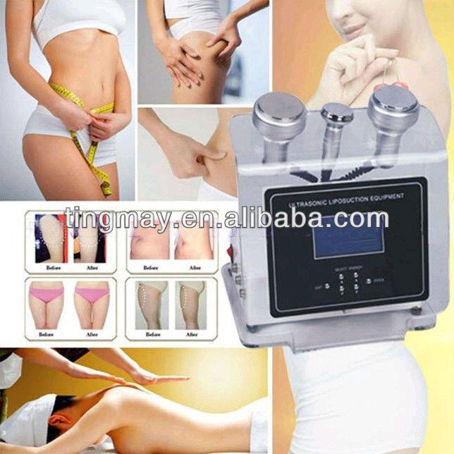 Ultraschallkavitation vor und nach Gewichtsverlust