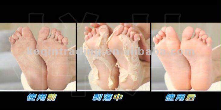 hot sale exfoliating foot mask for skin care peeling off. Black Bedroom Furniture Sets. Home Design Ideas