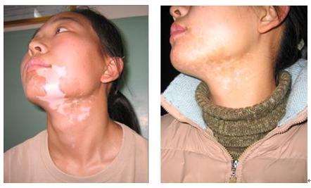 311nm Narrow Band Uvb Lamp Treatment Psoriasis Vitiligo