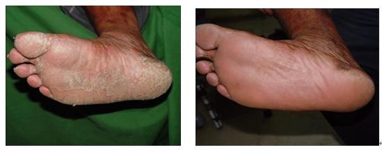 Nb Uvb Hand Held Lamp Vitiligo Treatment Without Cream