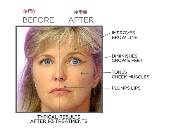 Face Master Facial Tone Tighten Skin Care ANTI AGING