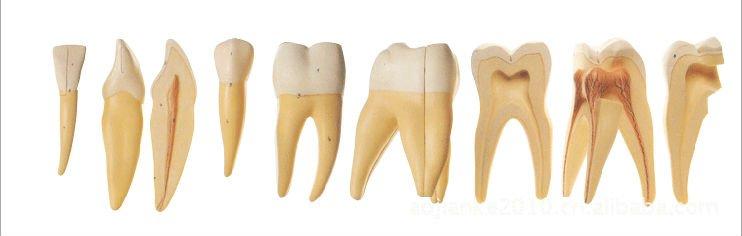 Iso Vergrößert Menschlichen Zähnen Modell,Anatomie Zahn,Zahn Japan ...