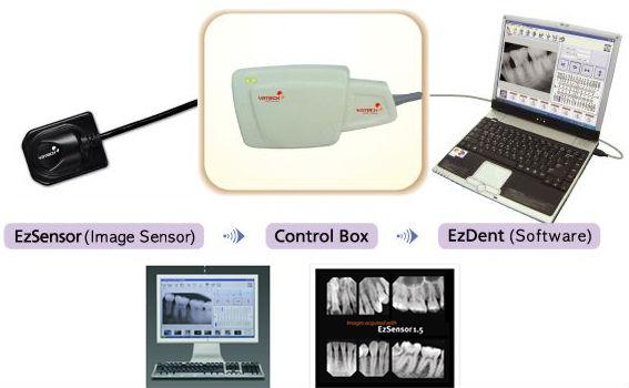 Original Digital Intra-oral Sensor Ez 1.5 Vatech Schick Dental ...