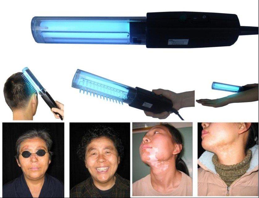 Portable Uv Lamp 311nm Psoriasis,Vitiligo,Eczema Treatment Machine ...