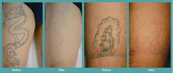 Yag q switched skin dark pigment removal tattoo laser med for Tattoo turned black after laser