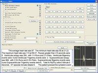 Cardioscan Ecg Holter Analysis System,Ekg Software - Buy Ecg ...